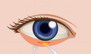 ตัดถุงใต้ตา-2